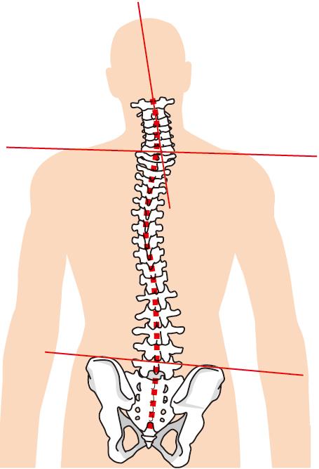 頚椎椎間板ヘルニアへの当院のアプローチは?