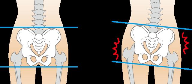生理痛を改善するには骨盤の歪みを整えることが大切です。