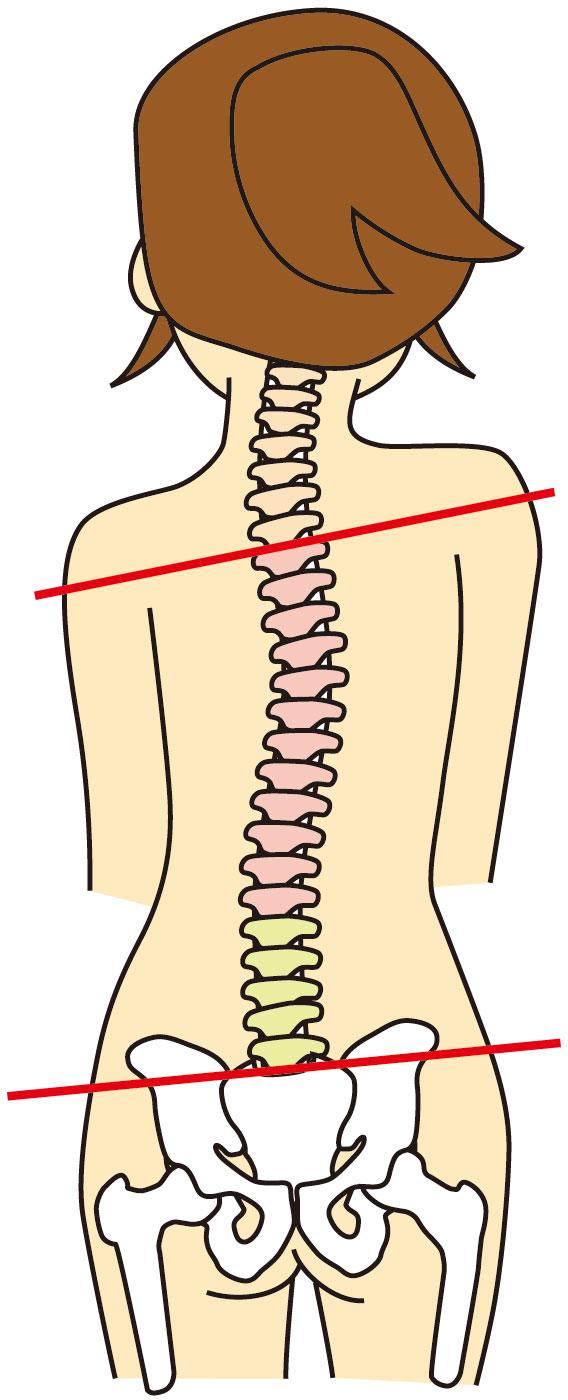 肋間神経痛への当院のアプローチは?